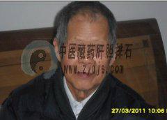 淄博王老先生肝内胆管结石自然排石成功