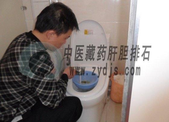 """邹平公安局李先生成功利用""""胆结石自然疗法""""排出体内结石"""